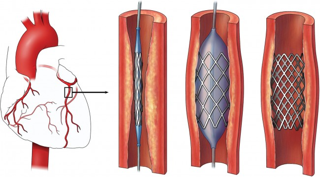 Angioplasty involves inflating a balloon in a clogged artery to help widen the artery (center image). It is often combined with the placement of a stent (far right image) to decrease the artery's chance of narrowing again.