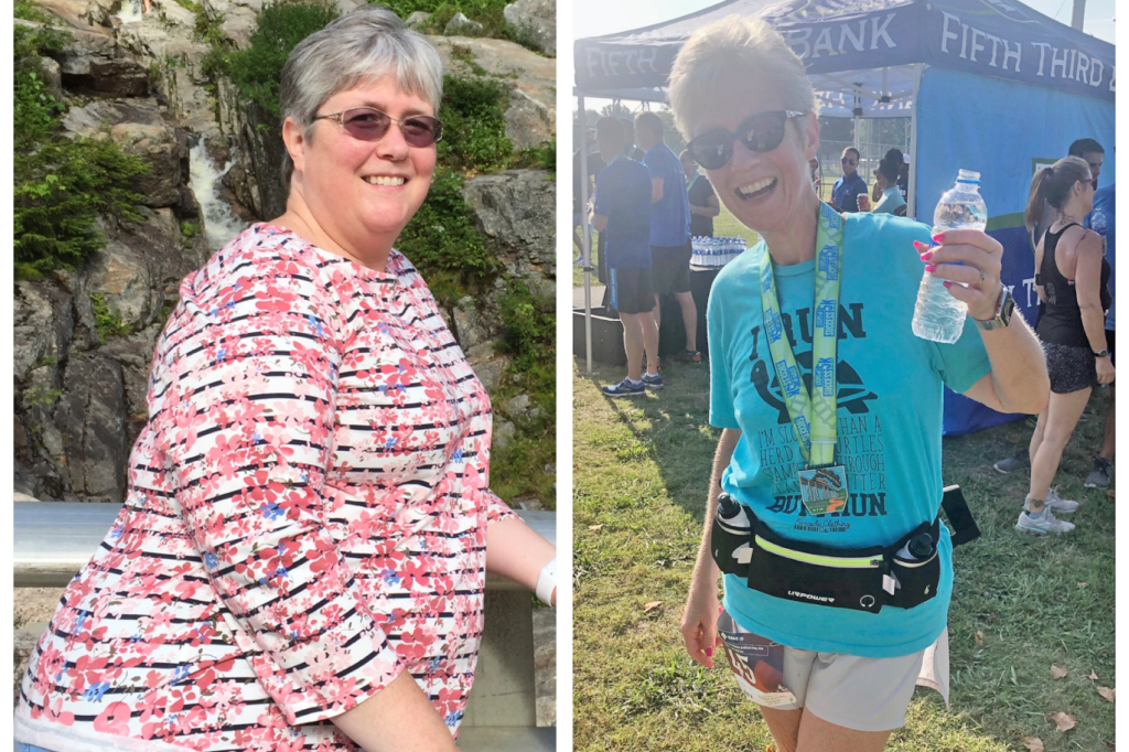 Karen Bruynell before and after her weight-loss journey