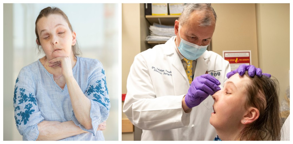 Collage of two photos. Left photo, Carmen Blandin Tarleton seven months after her second face transplant. Right photo: Bohdan Pomahac examines Tarleton during a recent follow-up appointment.